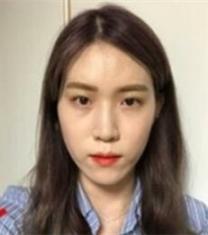 韩国NANA娜娜眼鼻综合整形+V-LINE+面部脂肪填充前后对比照片