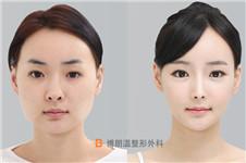 韩国博朗温金院长做鼻子案例效果+特色分享