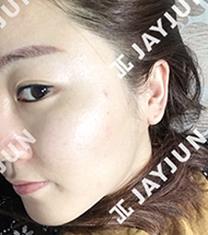 韩国jayjun痘肌治疗前后对比案例_术后