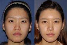 清潭李康元整形外科在韩国当地民众中,反馈好不好?