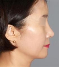 韩国able整形医院隆鼻+面部提升前后对比照片