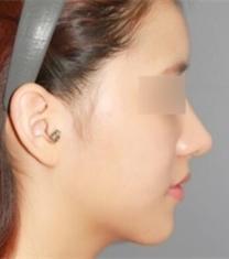 韩国able整形医院李真圭隆鼻手术前后照片
