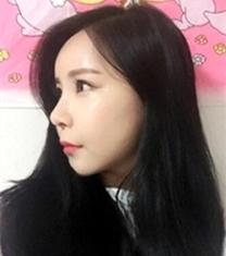 韩国Smile整形蒜头鼻矫正手术前后对比照片