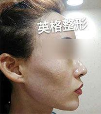 韩国金明镇牙医正鄂90天案例图_术前