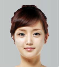 博朗温整形外科-韩国博朗温v-line+眼部手术前后对比照片