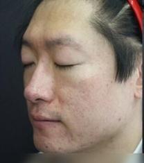 童颜中心面部痘印治疗前后对比照片_术前