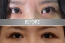 清潭第一和eve修复双眼皮和眼角,该怎么选谁更强?