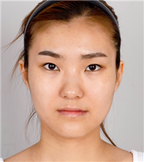 韩国jj洪镇柱整形外科双鄂整形案例对比图_术前