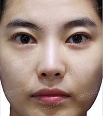 韩国CDU清潭优歪鼻矫正真人对比