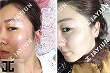 韩国jayjun皮肤管理有什么秘诀,为什么韩国女星在这里保养