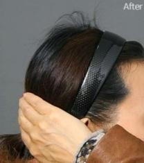 韓國ITEM整形醫院-韓國愛婷骨水泥填充后腦勺前后對比照片