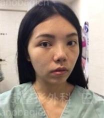 巴诺巴奇整形医院-巴诺巴奇轮廓三件套眼鼻修复前后对比照片