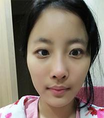 韩国ST眼鼻综合整形自拍对比后记