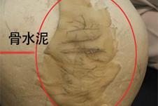 讲明白:后脑勺骨水泥填充术到底怎么手术,安全度几分?
