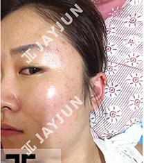 韩国jayjun痘肌治疗前后对比案例
