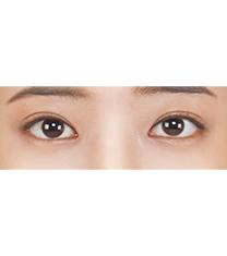 韩国ST医院眼下脂肪重制(去黑眼圈)手术真人对比