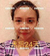 韩国金明镇在英格做下颌角+颧骨轮廓手术案例图