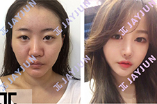 jayjun吴院长双眼皮手术效果怎么样,在韩国什么档次?