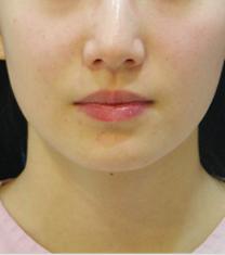 韩国江南三星整形外科-韩国江南三星嘴角整形案例对比