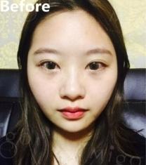 韩国MIGO整形医院鼻综合颧骨内推手术前后照片