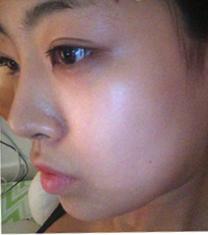 韩国JJ整形外科鼻修复+下颌角整形真人案例对比