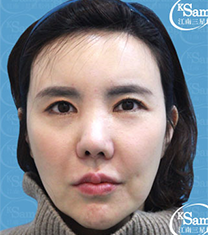 韩国江南三星面部提升手术案例对比