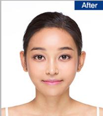 韩国Dream整形医院面部轮廓+隆鼻真人案例_术后