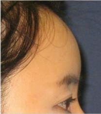 博朗温整形外科-韩国博朗温自体脂肪填充额头手术前后对比案例
