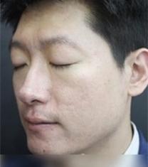 童颜中心面部痘印治疗前后对比照片_术后