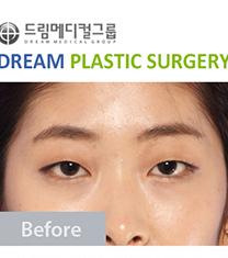 韩国德琳整形外科-韩国Dream整形医院上睑下垂真人案例对比