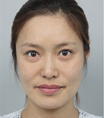 韩国DA整形面部埋线提升案例对比
