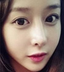 韩国will整形外科鼻整形案例对比
