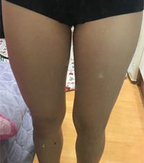 韩国丽妍k腿部吸脂案例对比图_术前