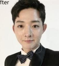 韩国MIGO医院歪鼻矫正前后对比照片_术后
