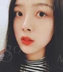 韩国MIGO医院眼鼻综合整形前后照片_术后