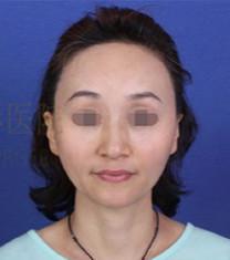 韩国女神医院面部自体脂肪填充案例对比