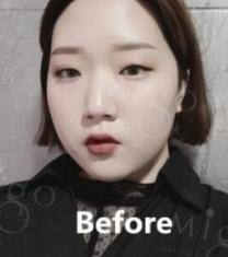 韩国MIGO眼鼻+面部吸脂整形前后对比照片_术前