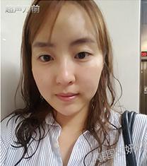 韩国丽妍k超声刀面部提升真人案例对比_术前