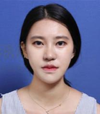 韩国女神医院下颌角整形案例对比_术后