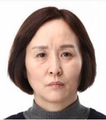 韩国MIGO整形医院面部松弛改善前后照片