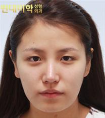 韩国现代美学小鹿眼整形案例恢复前后对比