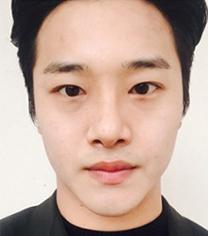 韩国GK男士眼鼻综合整形案例对比_术后