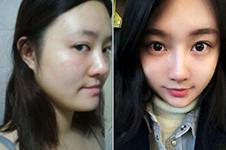 韩国做轮廓好的医院中爱宝属于什么水准?