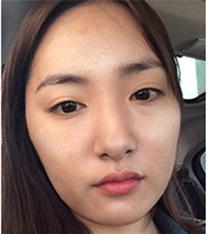 韩国博温朗颧骨+下颌角整形前后对比案例