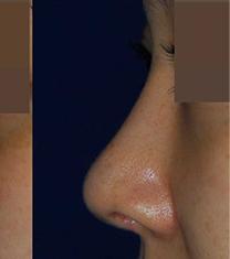 韩国rococo整形外科鼻整形案例对比_术后