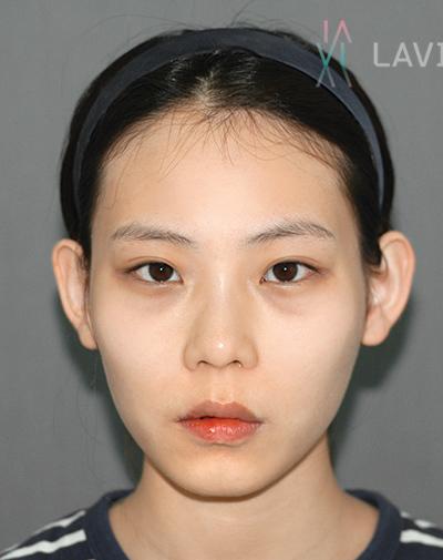 韩国拉菲安整形外科面部轮廓综合整形案例_术前