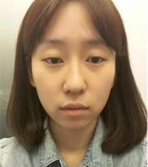 韩国加美整形医院眼鼻面部填充前后对比照片_术前