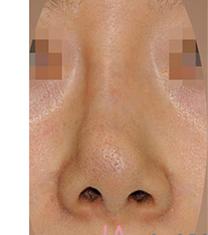 韩国拉菲安整形外科歪鼻矫正真人案例对比_术前