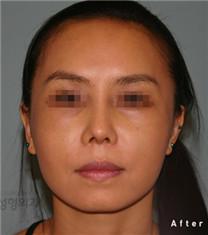 韩国propose整形网外科面部提升整形案例