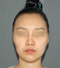 韩国拉菲安整形外科颧骨整形真人自拍对比_术前